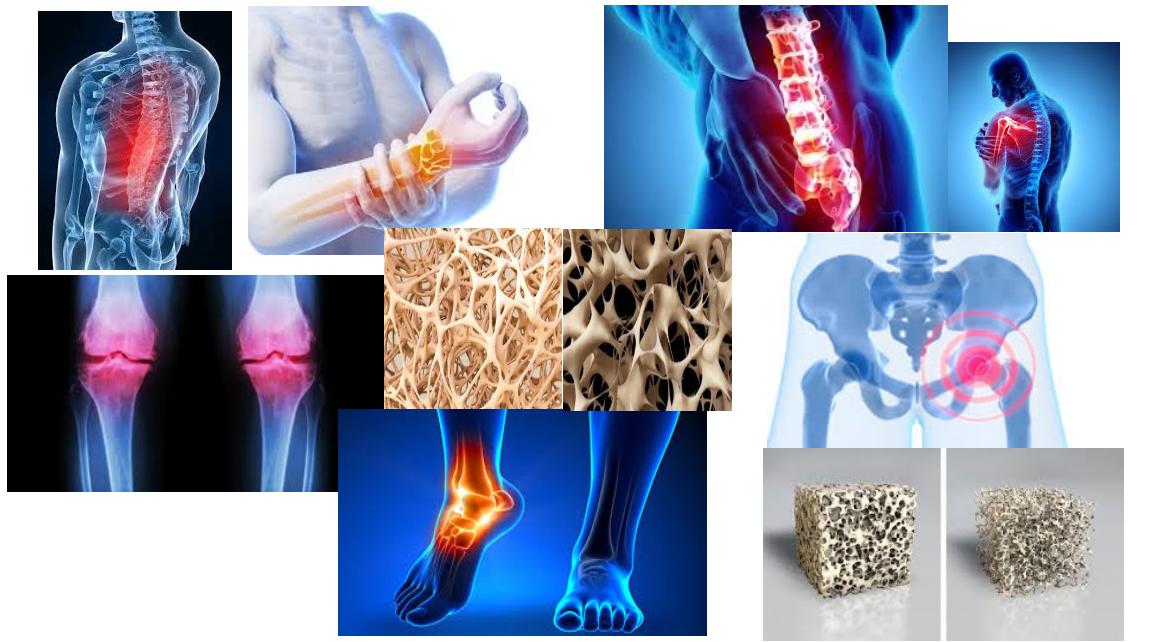 Laitage et ostéoporose